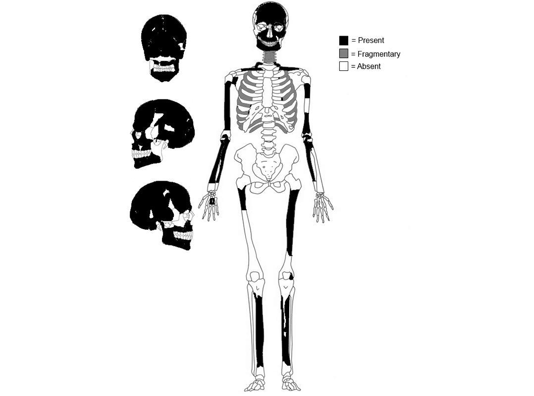 Bones of teen