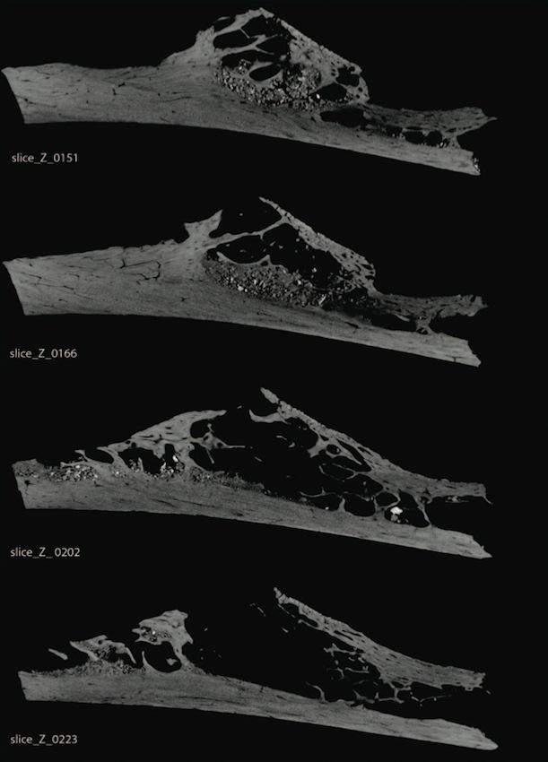 CT scans of the rib bone show the cavity left behind by the tumor.
