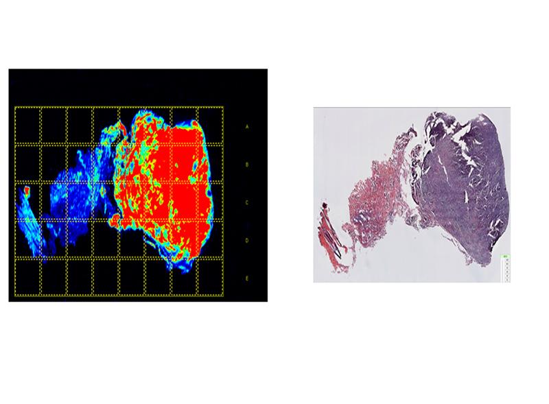 Tumor-Paint-Image_H&E.jpg